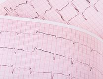 The tape with the cardiogram of a man Stock Photography