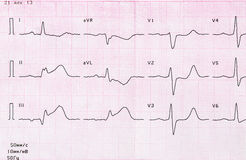 Tape ECG with acute period of myocardial infarction Royalty Free Stock Photos
