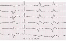 Tape ECG with acute period of myocardial infarction Stock Photography