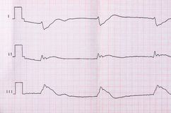Tape ECG after clinical death and successful resuscitation Stock Image