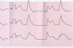 Tape ECG with macrofocal myocardial infarction and ventricular b Stock Image