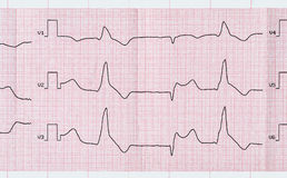 Tape ECG with macrofocal myocardial infarction and ventricular p Royalty Free Stock Images