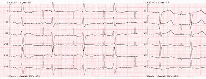 Tape ECG with pacemaker rhythm (atrial pacing) Royalty Free Stock Photo