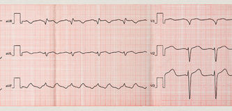 Tape ECG with paroxysm of atrial flutter Stock Photo