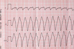 Tape ECG with paroxysm correct form of atrial flutter Stock Images