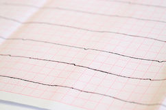 Tape ECG with ventricular asystole. Emergency cardiology. Tape ECG with ventricular asystole Royalty Free Stock Image