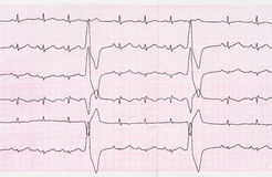 Tape ECG with ventricular premature beats (quadrigeminia) Royalty Free Stock Photography