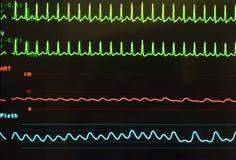 Taquicardia supraventricular, presión arterial arterial y saturación del oxígeno en monitor imagen de archivo