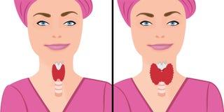 Tarczycowa zdrowa i powiększona tarczyca hypothyroid wektorowa ilustracja ilustracji