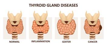 Tarczycowe gruczołowe choroby ilustracji
