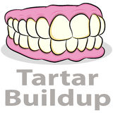 Tartar Buildup on Teeth Stock Photo