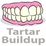 Tartar Buildup on Teeth Stock Photo