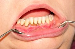 Tartar and dental plaque. Tartar, plaque on frontal teeth and gingivitis royalty free stock photo