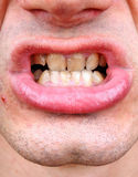 Tartar and tooth decay Royalty Free Stock Images