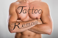Tattoo Removal Text On Man`s Chest And On His Arm. Tattoo Removal Text On Shirtless Man`s Chest And On His Arm Against Grey Background Stock Images
