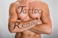 Tatuera borttagningstext på bröstkorg för man` s och på hans arm Arkivbilder