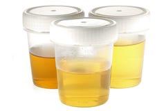 Tazas del espécimen para la urinálisis Foto de archivo libre de regalías