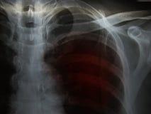 TB di tubercolosi polmonare: Infilt di alveolar di manifestazione dell'esame radiografico del torace immagini stock