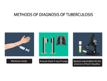 TB diagnostic methods. X-rays of light. Mantoux test. Examination of sputum. World Tuberculosis Day. Infographics. Stock Images