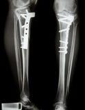 Tíbia da fratura (osso do pé) Foto de Stock