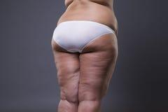 Te zware vrouw met vette benen en billen, zwaarlijvigheids vrouwelijk lichaam royalty-vrije stock foto's