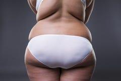 Te zware vrouw met vette benen en billen, zwaarlijvigheids vrouwelijk lichaam royalty-vrije stock afbeelding