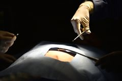 Team surgeon at work in operating room. Surgical light in the operating room. Preparation for the beginning of surgical operation with a cut. The surgeon is Royalty Free Stock Images
