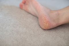 Close up cracked heels. Health problems with skin on feet stock photography