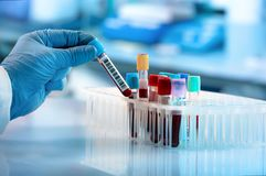 Free Technician Holding Blood Tube Test In The Research Laboratory Stock Photos - 119090223