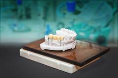 Technische Schüsse des Gipses modellieren mit den keramischen Zähnen lizenzfreie stockfotografie