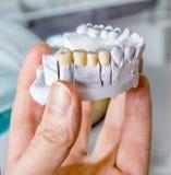 Technische Schüsse des Modells auf einem zahnmedizinischen prothetic Labor lizenzfreies stockbild