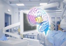 Technologies de pointe d'examen de cerveau dans la médecine Photo stock