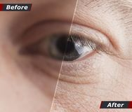 Technologisch concept, honderd percenten terugwinnings van visie Contactlenzen Goede Visie Before and after stock foto