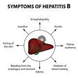 Tecken av hepatit B lever Världshepatitdag Juli 28th Infographics Vektorillustration på isolerad bakgrund Fotografering för Bildbyråer