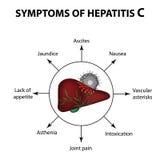Tecken av hepatit C lever Världshepatitdag Juli 28th Infographics Vektorillustration på isolerad bakgrund Royaltyfri Bild