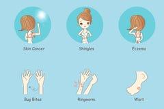 Tecknad filmkvinnan har hudproblem stock illustrationer