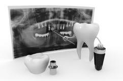Tecnologia dell'impianto dentario Immagine Stock Libera da Diritti