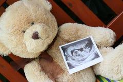 Teddy bear and baby ultrasound. Big teddy bear and baby ultrasound Stock Image
