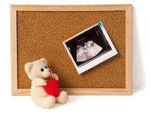 Teddy bear with ultrasound photo on notice board. An ultrasound picture of a baby in a mothers womb pinned on a corkboard. A nice teddy bear holding a heart is stock photo
