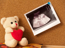 Teddy bear with an ultrasound photo pinned on cork. An ultrasound picture of a baby in a mothers womb pinned on a corkboard. A nice teddy bear holding a heart is stock photo