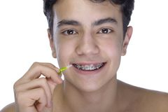 Teen Boy Wearing Braces On White Background Royalty Free Stock Photos