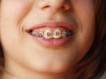Teen braces. Detail of teen smiling with metal braces royalty free stock photography