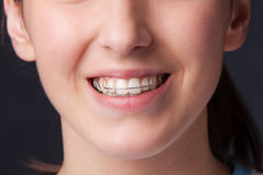 Teen denture Royalty Free Stock Photo
