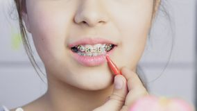 Teen girl cleaning and brushing teeth with clear metal braces. Using special brushing tools. Oral hygiene for braces stock video footage