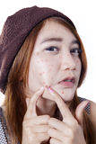 Teen girl pressing her pimple Royalty Free Stock Photo