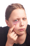 Teen girl with a problem skin Stock Photo