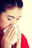 Teen woman with allergy or cold.  Stock Photo