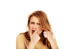 Teenage angry woman poping pimple Royalty Free Stock Photos