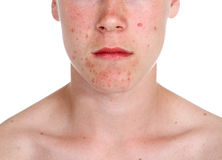 Teenage boy with acne Royalty Free Stock Photos