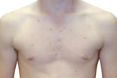 Teenage Boy Extreme Upper Body Acne Problem. Photo of Teenage Boy Extreme Upper Body Acne Problem Stock Images